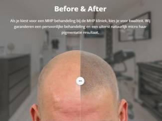 Micro Hair Pigmentation - MHP kliniek