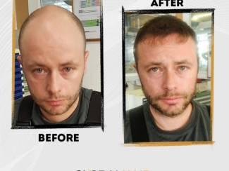 FUE en FUT Haartransplantatie?