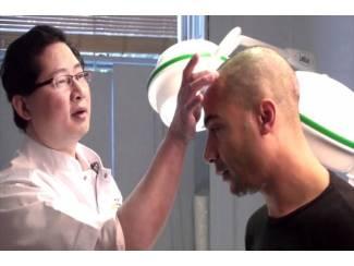 Haartransplantatie Behandeling