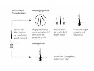 Haartransplantatie in Nederland of buitenland?